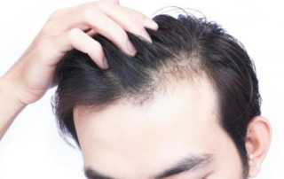 How to counter hair loss gafencu magazine