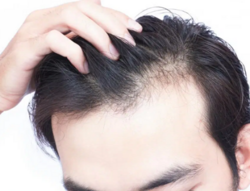 Combat male hair loss with these innovative procedures