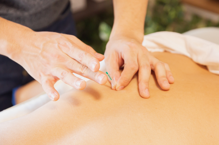 gafencu wellness wellbeing Five worth-trying massages you haven't heard of acupuncture